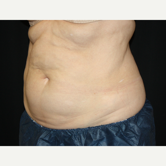 55-64 year old woman treated with CoolSculpting after 2036959
