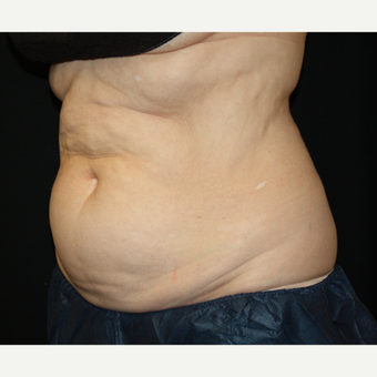 55-64 year old woman treated with CoolSculpting before 2036959