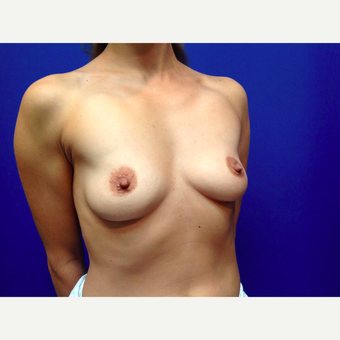 25-34 year old woman treated with Breast Augmentation before 3019047