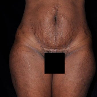 35-44 year old woman treated with Tummy Tuck before 2232483