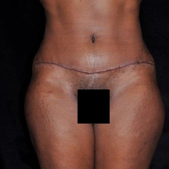 35-44 year old woman treated with Tummy Tuck after 2232483