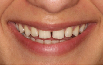 35-44 year old woman treated with Invisible Braces OrthoSnap