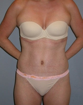 42 year old Tummy Tuck patient after 1325340
