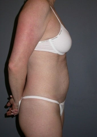 42 year old Tummy Tuck patient 1325340