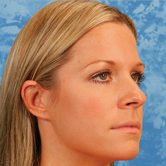 Rhinoplasty before 3124841