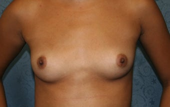 Breast Aug, saline under the muscle before 622088
