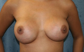 Breast Aug, saline under the muscle after 622088