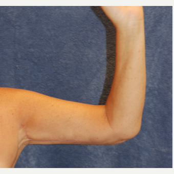 58 year old woman for arm lift after 3129078