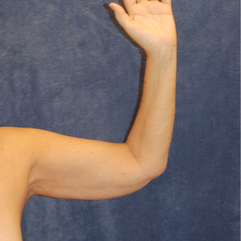 58 year old woman for arm lift before 3129078