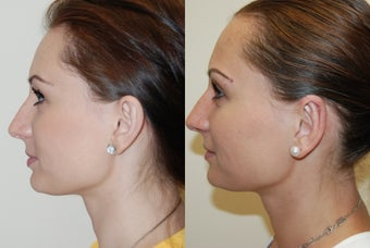 Otoplasty Surgery before 1075799