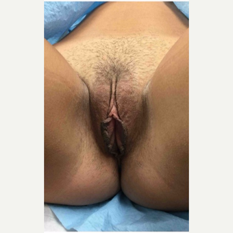 18-24 year old woman treated with Labiaplasty before 3187443