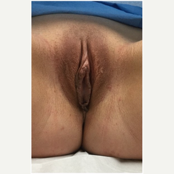 18-24 year old woman treated with Labiaplasty after 3187443