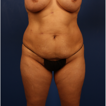 35-44 year old woman treated with Tummy Tuck before 3596502