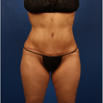 35-44 year old woman treated with Tummy Tuck after 3596502