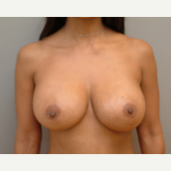 35-44 year old woman treated with Breast Implants after 3741979