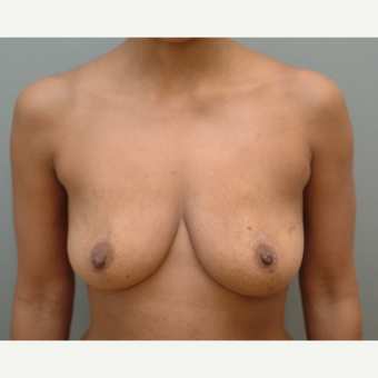 35-44 year old woman treated with Breast Implants before 3741979