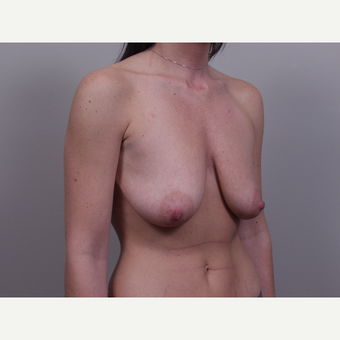 25-34 year old woman treated with Breast Lift before 3769699
