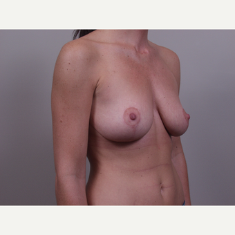 25-34 year old woman treated with Breast Lift after 3769699