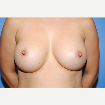 35-44 year old woman treated with Breast Augmentation after 3763018