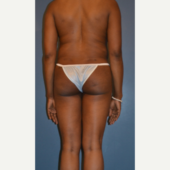 35-44 year old woman treated with Liposuction after 3414840