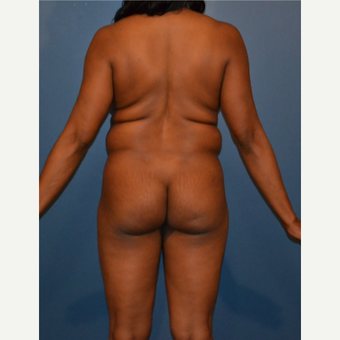 35-44 year old woman treated with Liposuction before 3414840