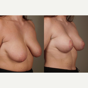 35-44 year old woman treated with Breast Lift before 3659808