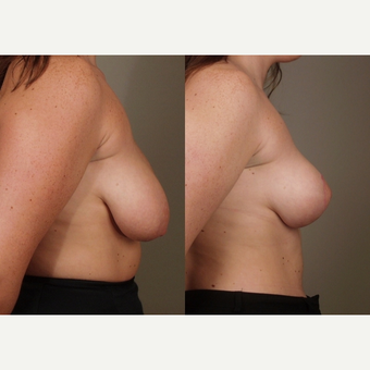 35-44 year old woman treated with Breast Lift after 3659808