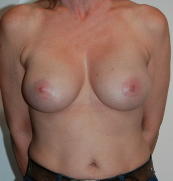 47 years old - Breast Enlargement - Anatomical Implant Style 410 Allergan FF 375 after 1089768