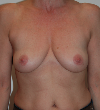 47 years old - Breast Enlargement - Anatomical Implant Style 410 Allergan FF 375 before 1089768