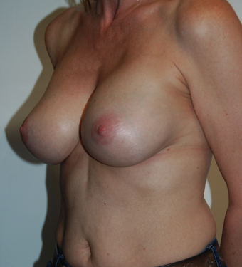 47 years old - Breast Enlargement - Anatomical Implant Style 410 Allergan FF 375 1089768