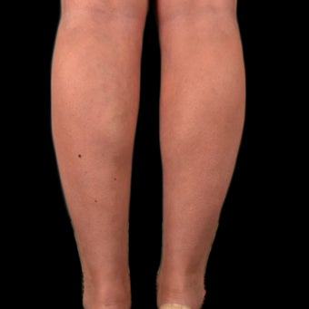 18-24 year old woman treated with Tumescent Liposuction after 2025435