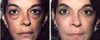 "Lower Blepharoplasty Removes Woman's ""Bags""  before 1353967"