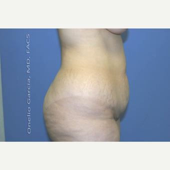 45-54 year old woman treated with Tummy Tuck before 2998997