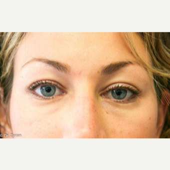 25-34 year old woman treated with Eyelid Surgery before 3093906