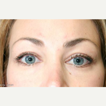 25-34 year old woman treated with Eyelid Surgery after 3093906