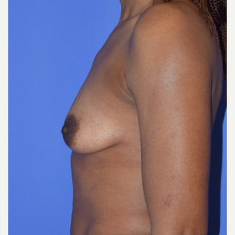 Breast Augmentation with Ideal Saline Breast Implants 350 cc before 3080177