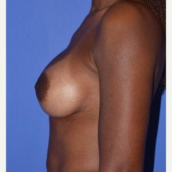 Breast Augmentation with Ideal Saline Breast Implants 350 cc after 3080177