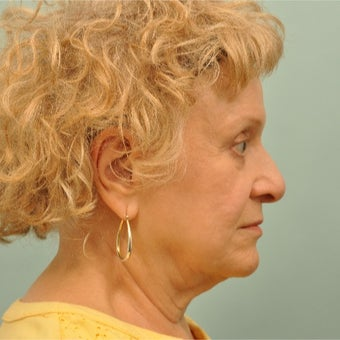 65-74 year old woman treated with Ultherapy after 2208486