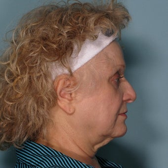 65-74 year old woman treated with Ultherapy before 2208486