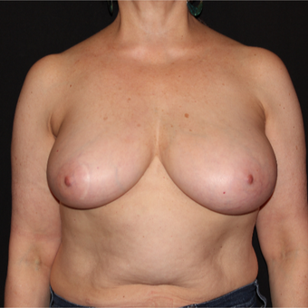 55-64 year old woman with Scarless Breast Reduction before 3538473
