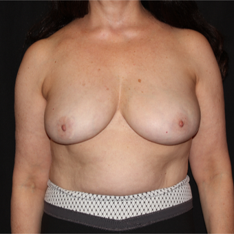55-64 year old woman with Scarless Breast Reduction after 3538473