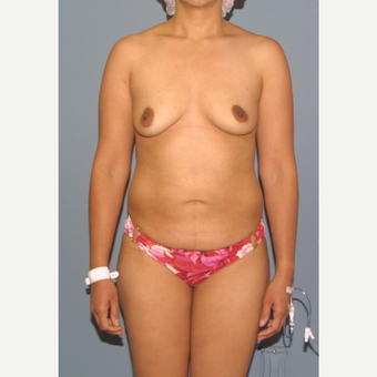 25-34 year old woman treated with Mommy Makeover before 3558569