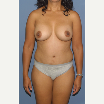 25-34 year old woman treated with Mommy Makeover after 3558569