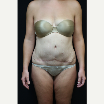 30 year old woman treated with Tummy Tuck after 3089254