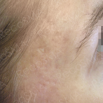 24 year old female with post-acne scars treated with RecoSMA after 2974628
