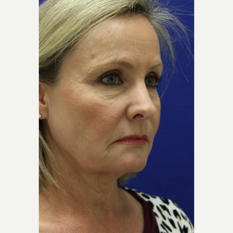 55-64 year old woman treated with Facelift before 3239289