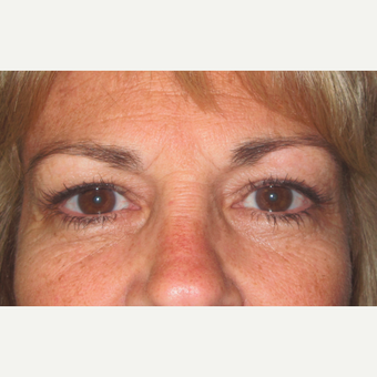 Eyelid Surgery (Blepharoplasty) after 3831525