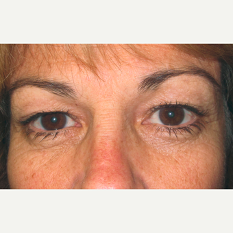Eyelid Surgery (Blepharoplasty) before 3831525