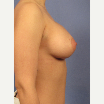 25-34 year old woman treated with Breast Augmentation after 3106729