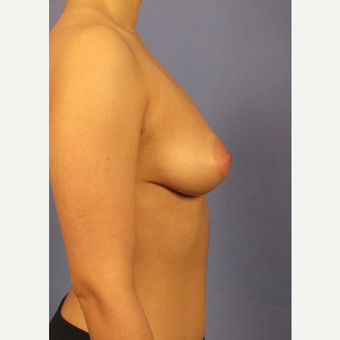 25-34 year old woman treated with Breast Augmentation before 3106729